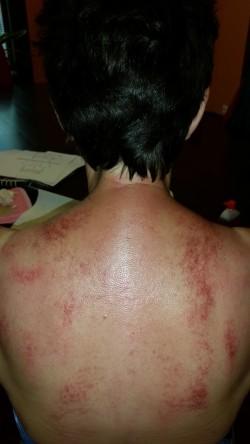 guasha; rugbehandeling; schrapen;